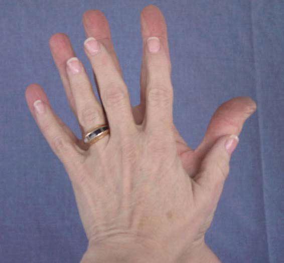 руки 6 и 9